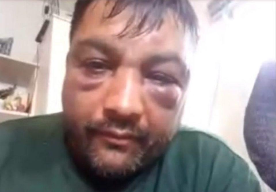 (ВИДЕО) ТЕПАНИОТ РАСКАЖУВА: Силеџиите на Заев за малку не го убиле, сакале да го прегазат и со возило!