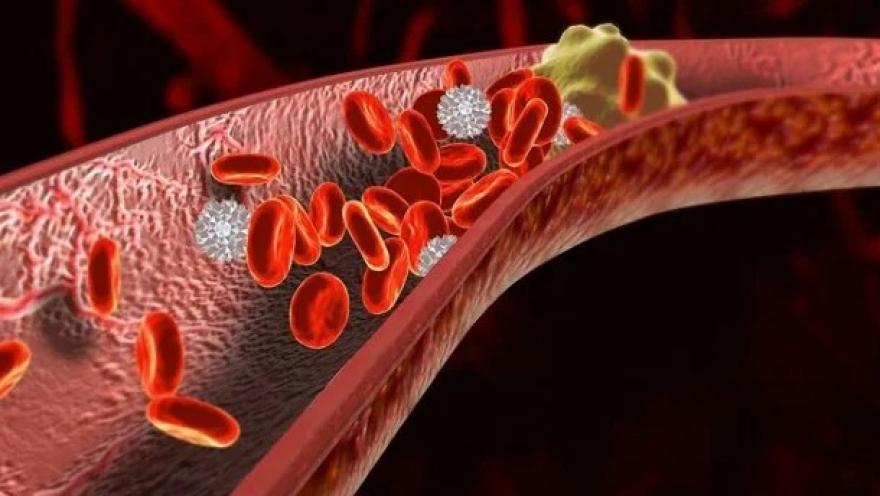 Препознајте и реагирајте навреме: Овие симптоми се показател дека во вашето тело се појавил тромб