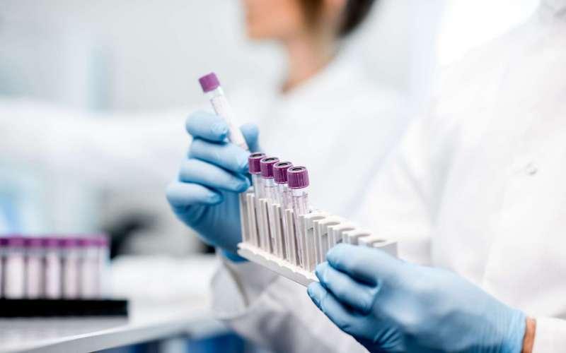 Граѓаните лани потрошиле над 87 милиони евра по приватни болници и лабаратории