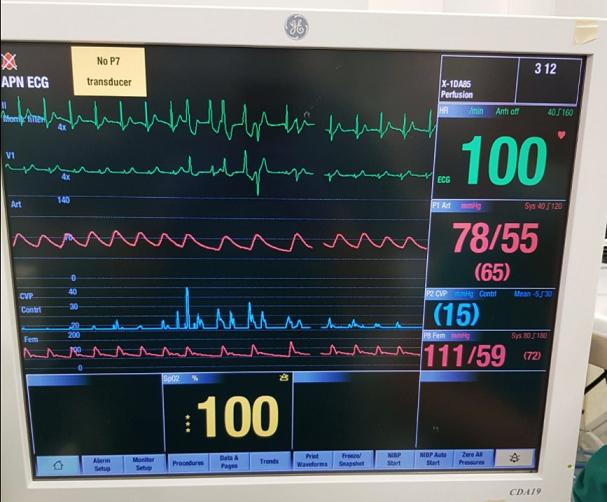 Извршена четврта успешна трансплантација на срце од починат донор
