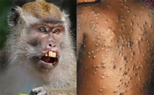 Прв случај со мајмунска сипаница донесена од Африка во САД