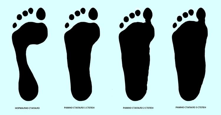 Деформитетите на стапалото, колкот и рбетот најчести кај популацијата од 0-18 години во Македонија
